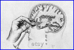 Lobotomie Orbitoclast and Hammer