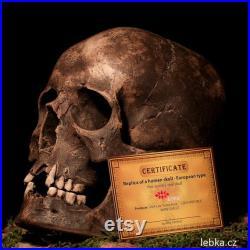 Réplique de crâne humain Con Caroli